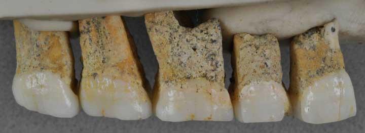 یک ردیف از دندانهای هومو لوزونسیس